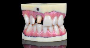 La nueva impresora 3D J720 de Stratasys ofrece a los laboratorios dentales capacidades de AM a todo color
